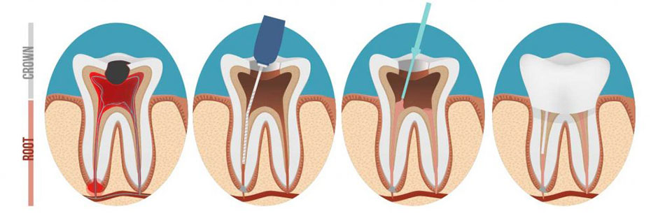 root canal therapy explained with crown images Arvada Dental Center, CO