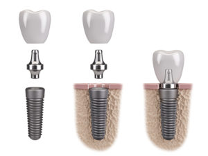 three images of tooth implant Arvada Dental Center