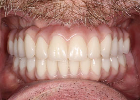 Arvada Dental Center - Smile Gallery Case 1 - Full Veneers After Photo