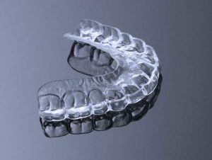 Nightguards and Mouthguards in Arvada